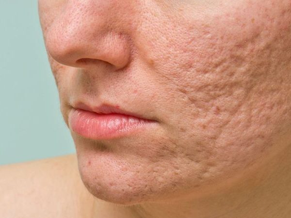 Acne Scars: Are There Any Treatments Available?